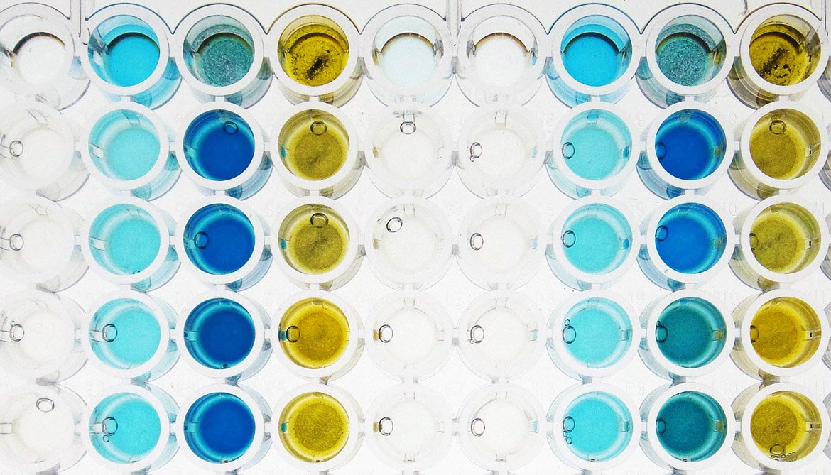 colorful medical assay