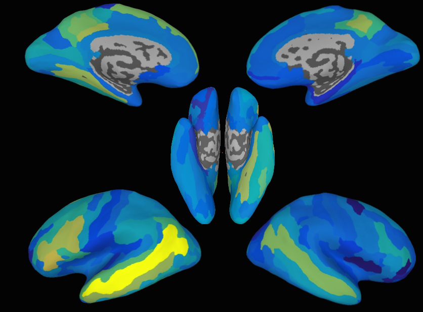 These brain maps show how accurately the model predicted patterns for new sentences. The brighter the area, the higher the accuracy. (Credit: Andrew Anderson and Xixi Wang/ University of Rochester)