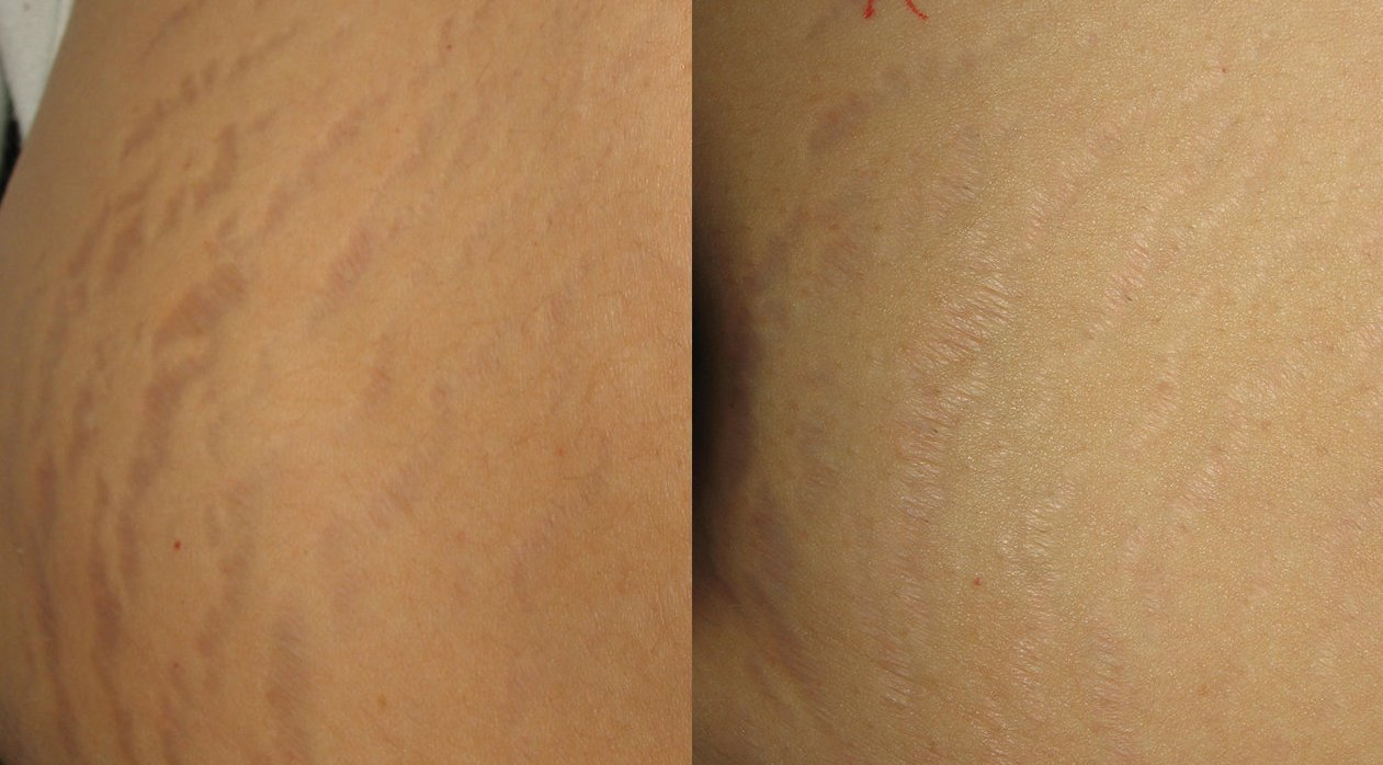 how to lose stretch marks